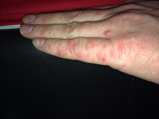 itchy skin no rash feeling sick