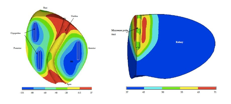 Focal Ablation and Immunotherapy for Cancer Treatment - Bioheat