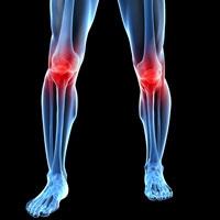 Artrose en Bemer