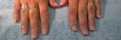 This Shows Acrylic On Bitten Nails Another Option Is Cal Gel Which Gives You A Natural Light Feeling And Kinder To Your