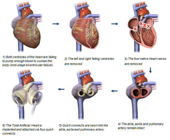Help for the Brokenhearted: Wearable, Biosynthetic and ... |Prosthetic Heart