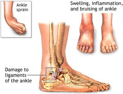 ANKLE SPRAIN - ACTIVE CARE PHYSIOTHERAPY CLINIC