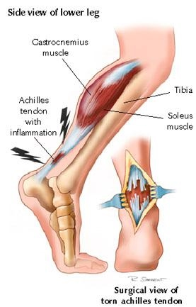 ACHILLES TENDON INJURY - ACTIVE CARE PHYSIOTHERAPY CLINIC