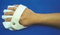 Upper Limb Orthotics Active Care Physiotherapy Clinic