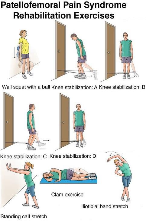 PATELLO FEMORAL SYNDROME - ACTIVE CARE PHYSIOTHERAPY CLINIC