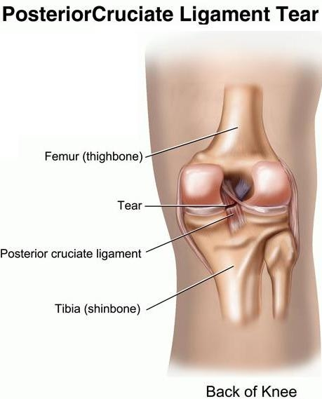 posterior cruciate ligament pcl injury Knee ligaments: acl, pcl, mcl, lcl the fourth ligament and the ligament that is toward the back of the knee is the posterior cruciate ligament if two or more knee ligaments tear, this is a knee dislocation.