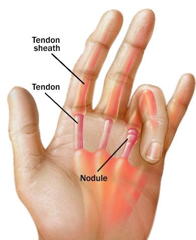 trigger finger - active care physiotherapy clinic  google sites