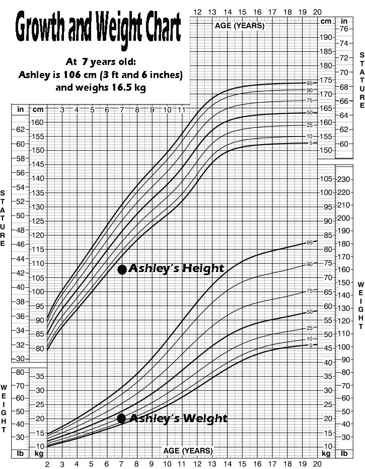 Growth And Weight Chart Ashleysbraintumor