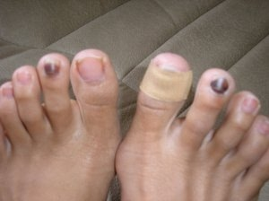 Blood Blister Under The Nail Subungal Heamatosis Warning Moderate Graphical Medical Images On This Page