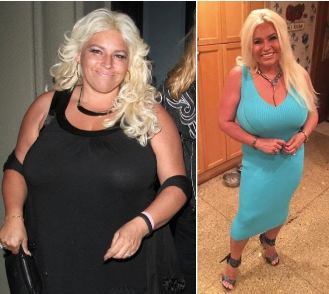 Beth Chapman Weight Loss Cancer