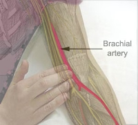 where is the brachial artery