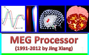 MEG Processor is a software package with new techniques for imaging functional brain activity.
