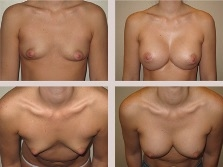 breast-actives-pictures