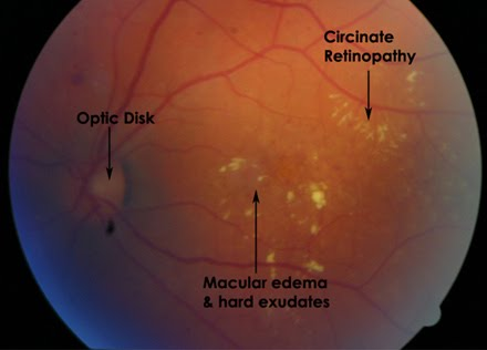Hard Exudates Diabetic Retinopathy