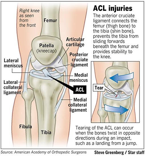 Acl Injury - Back Pain Doctor New York
