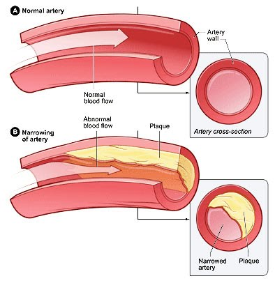 coronary artery disease research paper