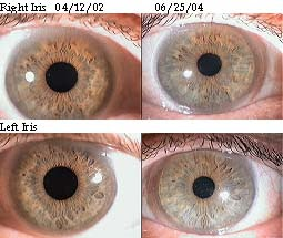 About Rayid Iridology Understanding Human Behavior