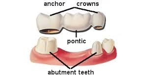 These False Teeth Are Called Pontics And Can Be Made From Gold Alloys Porcelain Or A Combination Of Materials Dental Bridges Supported By