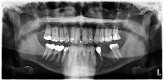 panoramic xray info, prices - www.certifieddentists.org/