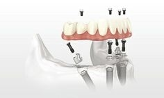 For Board Certified Mexico Dentists www.certifieddentists.org/