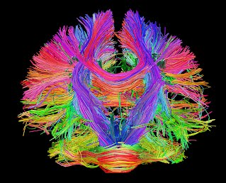 The Human Connectome Project - http://thinktank.uchicago.edu/blog/2014/1/8/mapping-the-human-brain-to-understand-the-human-mind
