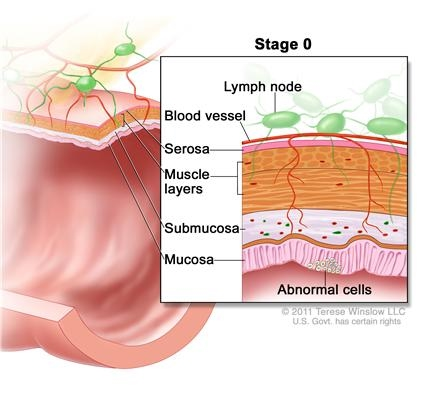 Stages Of Colon Cancer Colon Cancer