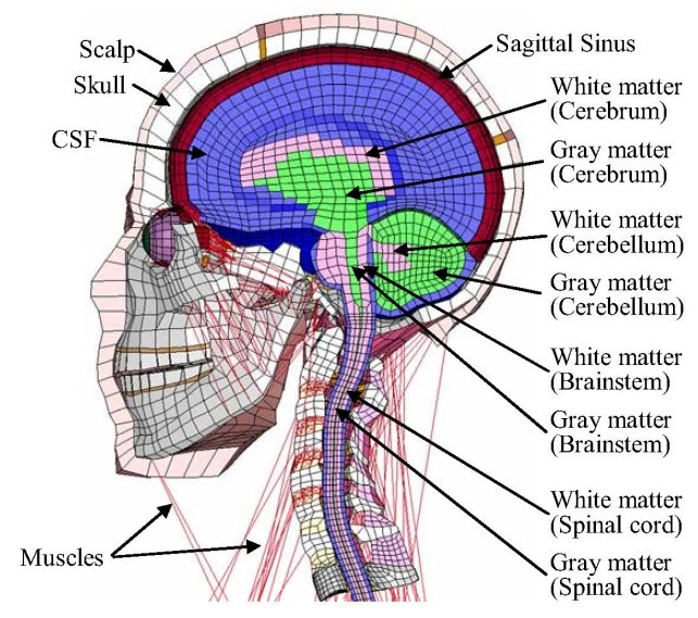Concussion 3d Diagram - Electrical Work Wiring Diagram •