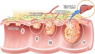 Characteristics Of Colorectal Cancer Crc Contemplating Colon Cancer