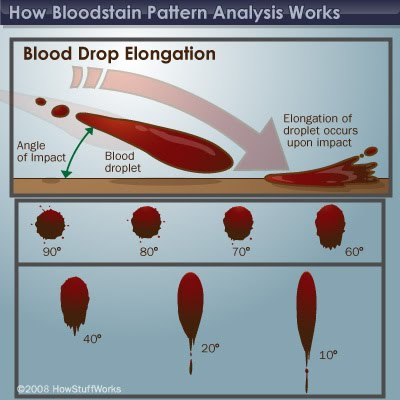 blood pattern analysis Bloodstain pattern analysis (bpa), known in the criminal justice field as blood splatter analysis, has been studied since the 1890s blood splatter, or bloodstain pattern constructional readings, is a technique that seeks to piece together the incident that caused an individual's bleeding.