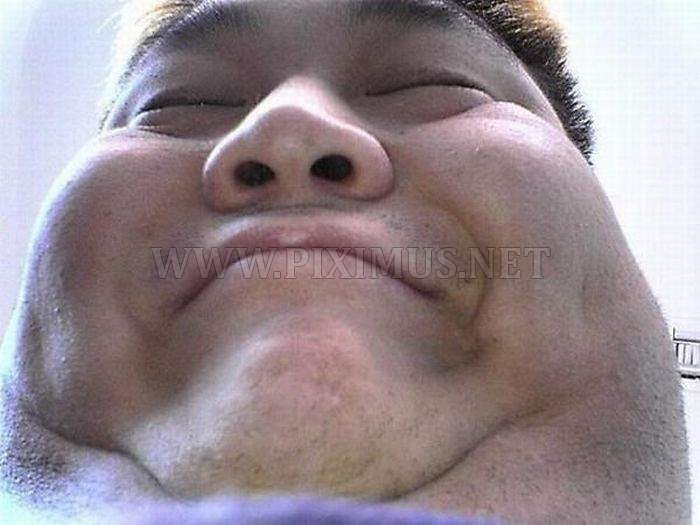 Double chin ugly people