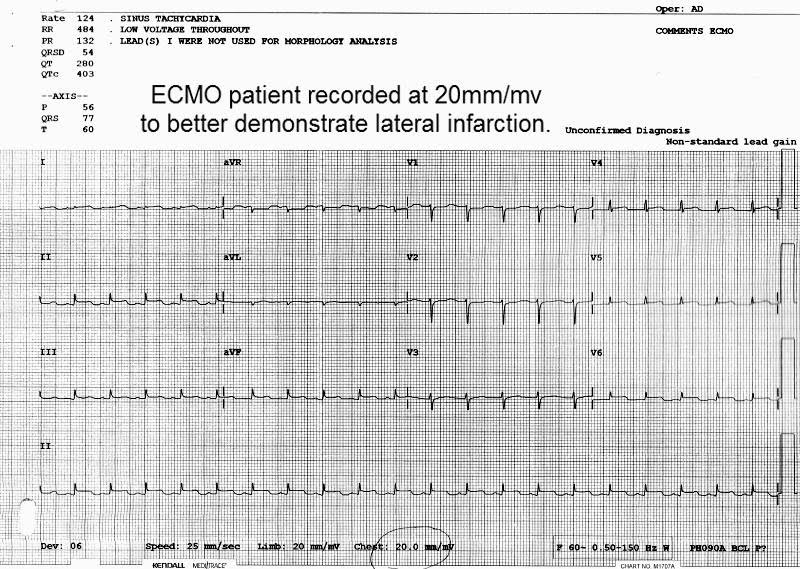 Abnormal Ecgs Electrocardiology Instruction