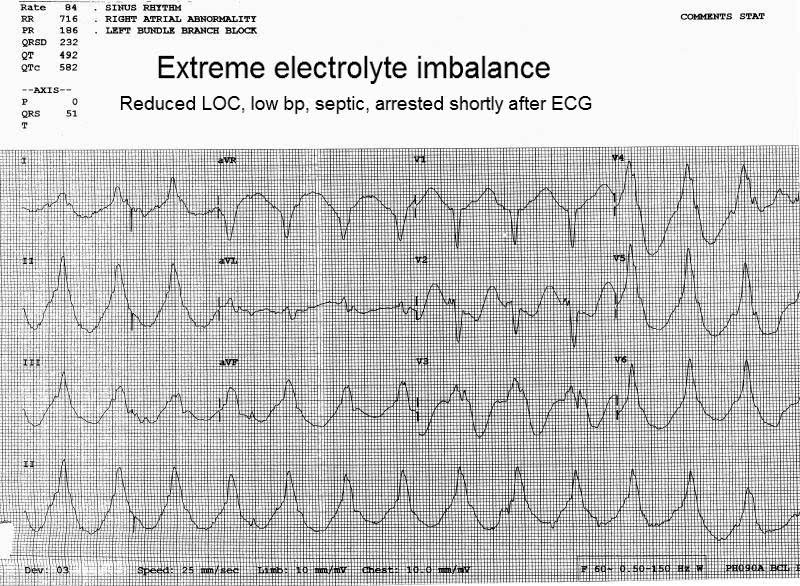 Ecg Abnormalities Page 2 Electrocardiology Instruction