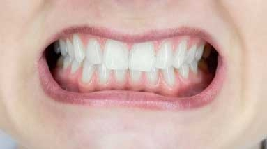 Causes of receding gums