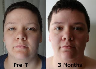 Ftm before and after face