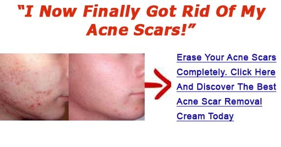 Pimple Scars Removal Products Uncover Methods To Eliminate Zit