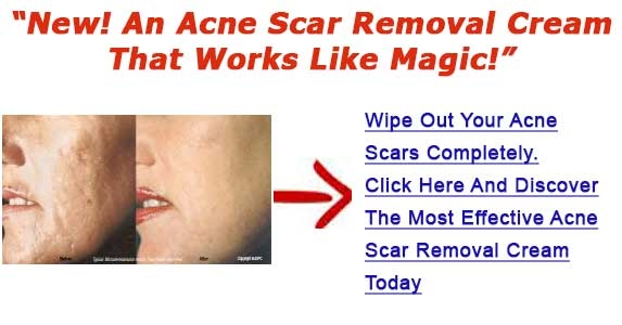 Get Rid Of Acne Scars On Face Valuable Hints For Getting Rid Of
