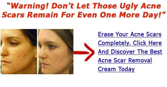 Acne Mark Cream Reviews Four Techniques To Get Rid Of Acne