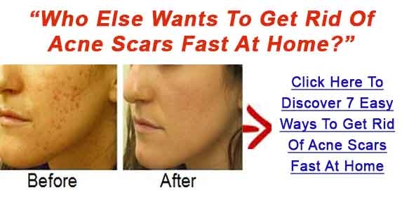 How to make blemishes go away fast