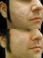 How to get rid of indented acne scars effective techniques for cucumber and tomatoes are home treatments recommended for acne marks because of their high water contents grate some cucumber and place directly on your ccuart Image collections