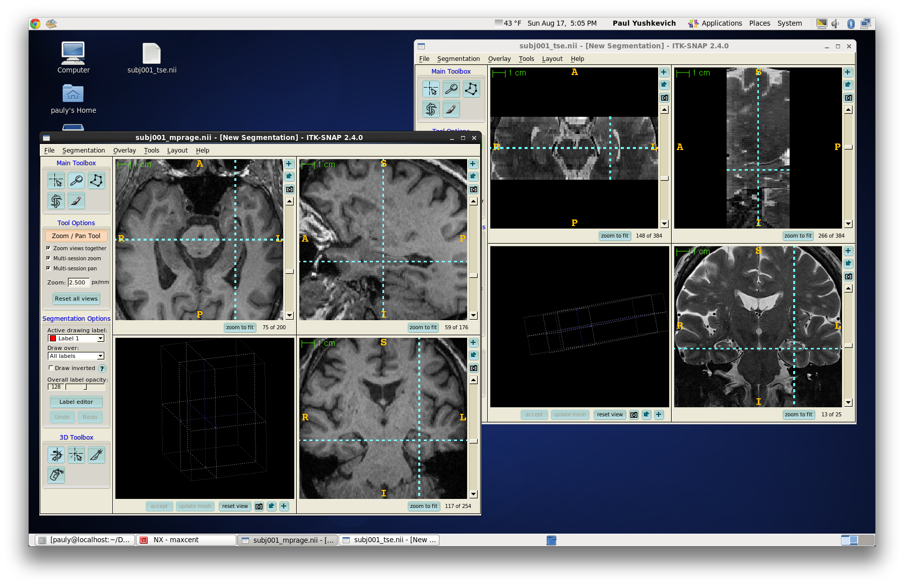 Getting Started - Automatic Segmentation of Hippocampal