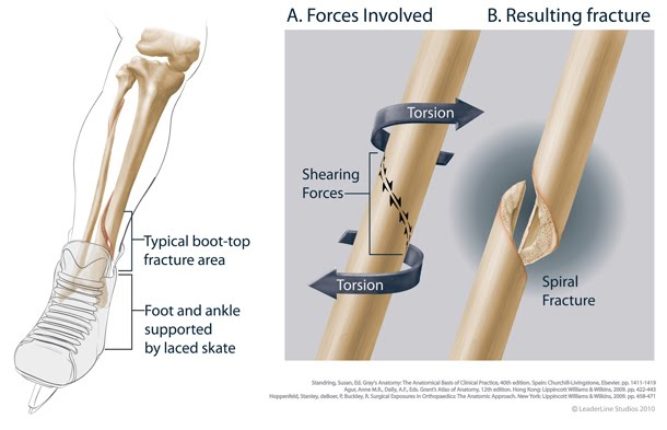 adults Spiral fractures in