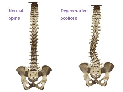 vertebral column and idiopathic scoliosis results Mr imaging and multiplanar reconstruction were used to evaluate relative length of the spinal cord to the vertebral column in adolescent idiopathic scoliosis (ais.