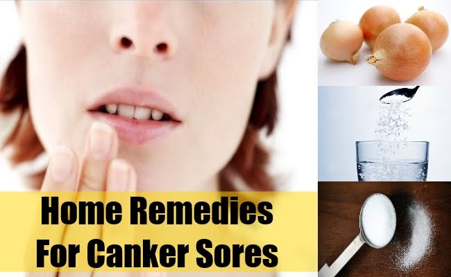 Home Remedy For Canker Sores