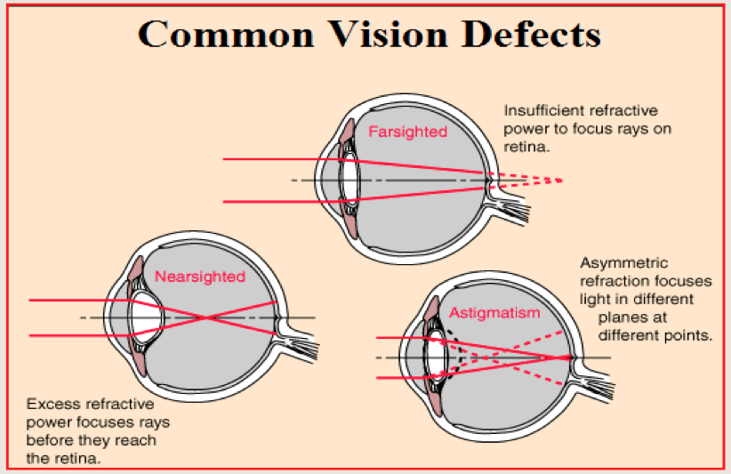eye defects Cats can adapt to many types of eye conditions and lead active lives, while others conditions may require ongoing care and lead to complications and blindness - wag.