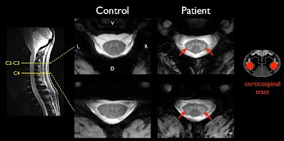 7T MRI of the spinal cord
