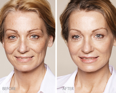 Dermal fillers cost: Price efficiency and other benefits of