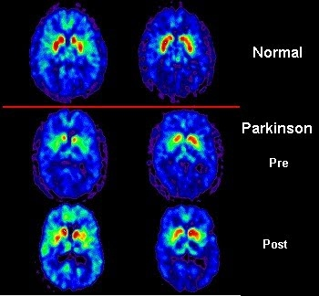 Parkinson Pet Scan