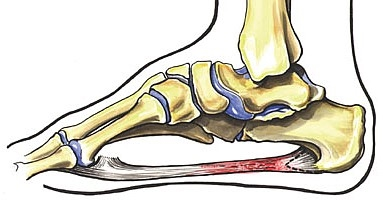graphic relating to Plantar Fasciitis Exercises Printable referred to as Plantar Fasciitis - Mage Rx information
