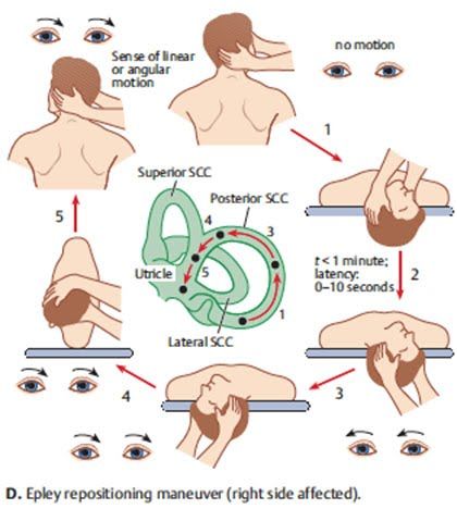 Brandt-daroff Exercises For Bppv Pdf