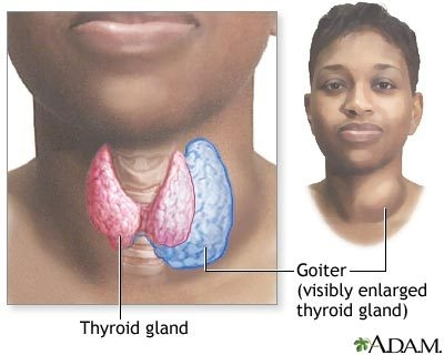 Does hyperthyroidism cause vaginal itching